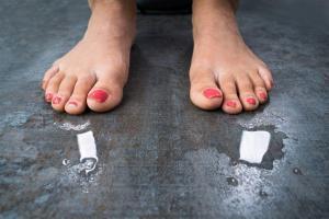 Transpiration des pieds chez une femme